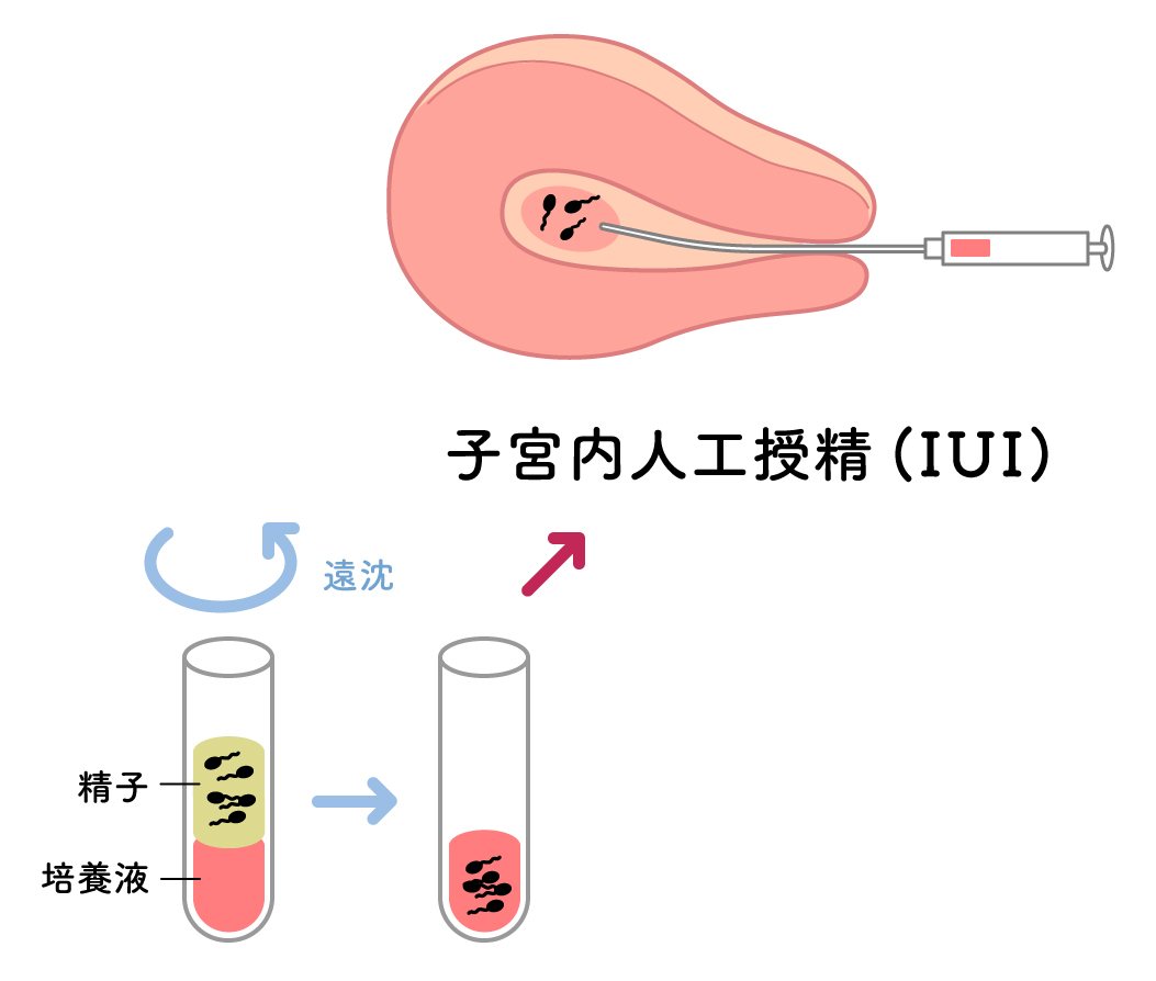 人工授精(IUI) | 八重垣レディースクリニック