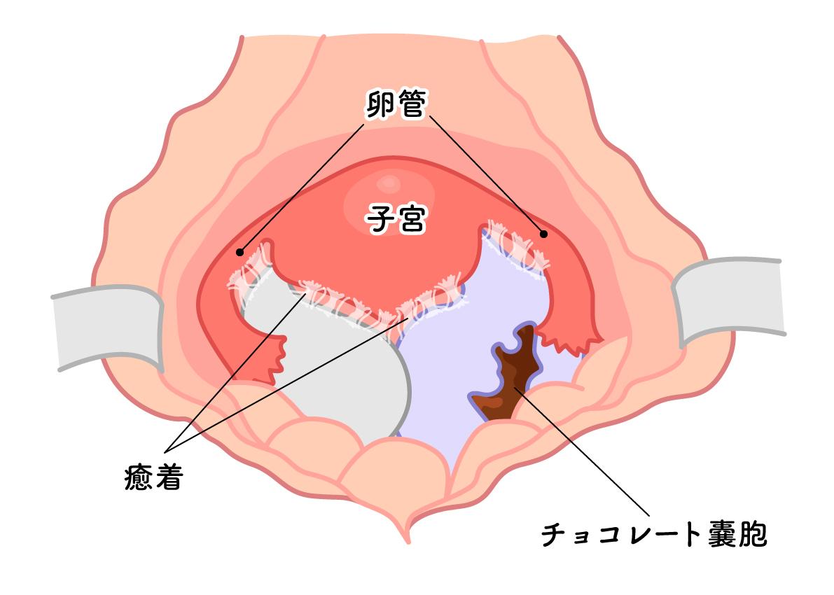 症 子宮 腰痛 膜 内